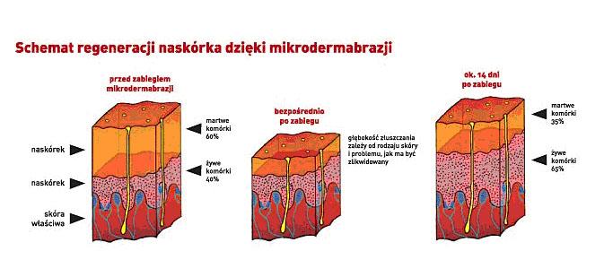 mikro1