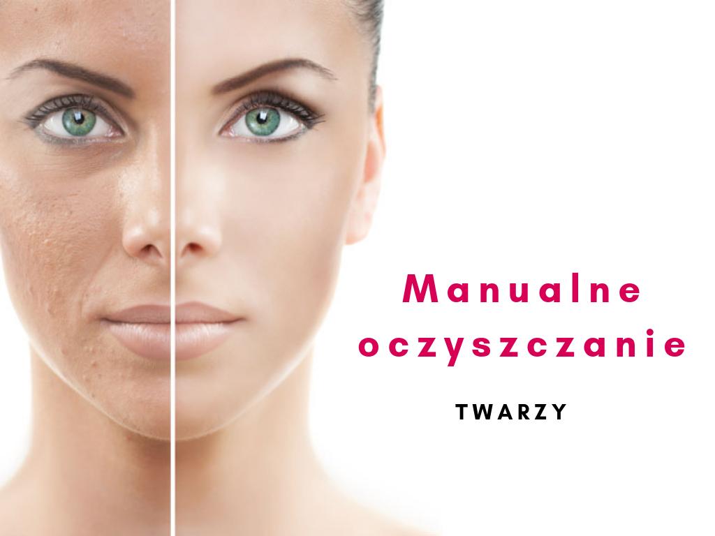 Manualne oczyszczanie twarzy - Gabinet Kosmetyczny Gdańsk Morena